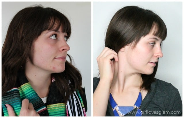 Before and after Proactiv plus