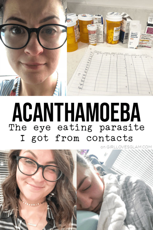 Acanthamoeba Parasite from Contacts
